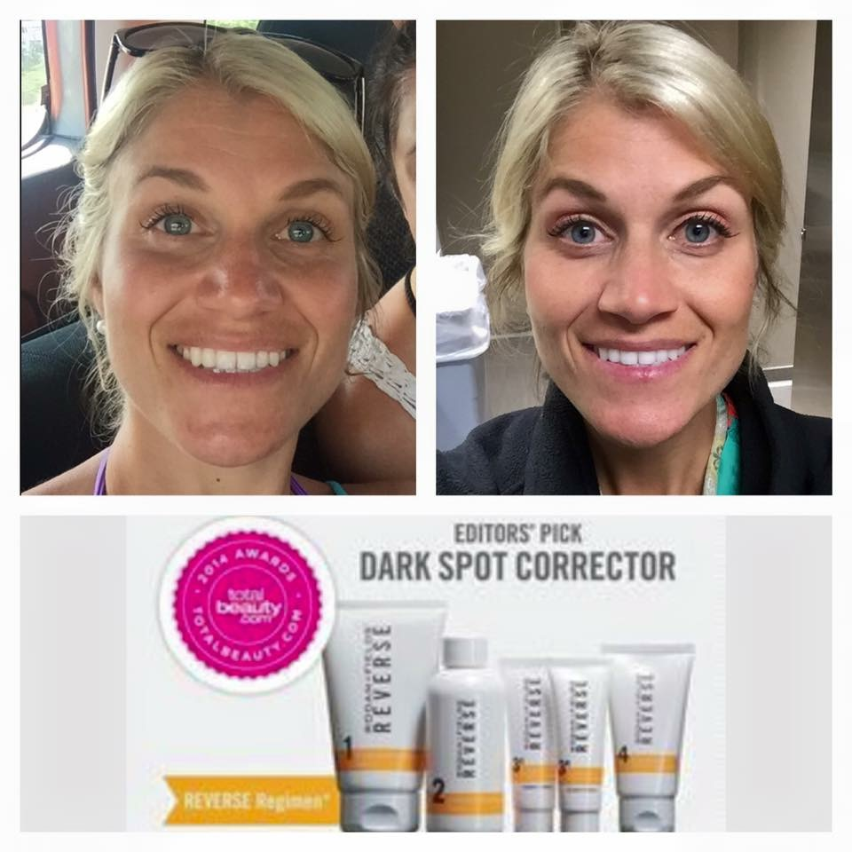 here are some other before and after pictures from customers who are using rodan fields and loving it